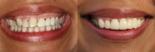 Crown and Bridge Case 1 Smiling: Before & After