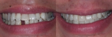 Crown and Bridge Case 2 Smiling: Before & After