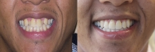 Invisalign Case 1: Before & After