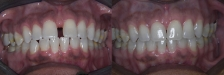 Invisalign Case 2: Before & After