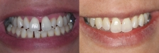Invisalign Case 3: Before & After