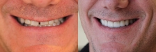 Smile Makeover 2: Before & After