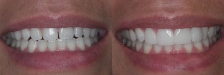 Veneer Case 1: Before & After