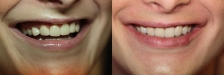 Veneer Case 2 Natural Smile: Before & Afte