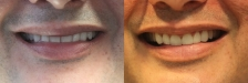 Veneer Case 3: Before & After