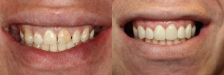 Veneer Case 4: Before & After